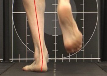 Biomechanical assessment